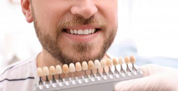 Teeth-whitening-Blackheath_347f8e176920096b3820bc4dbaed2349