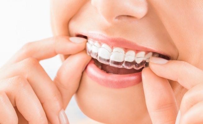 childrens orthodontics blackheath